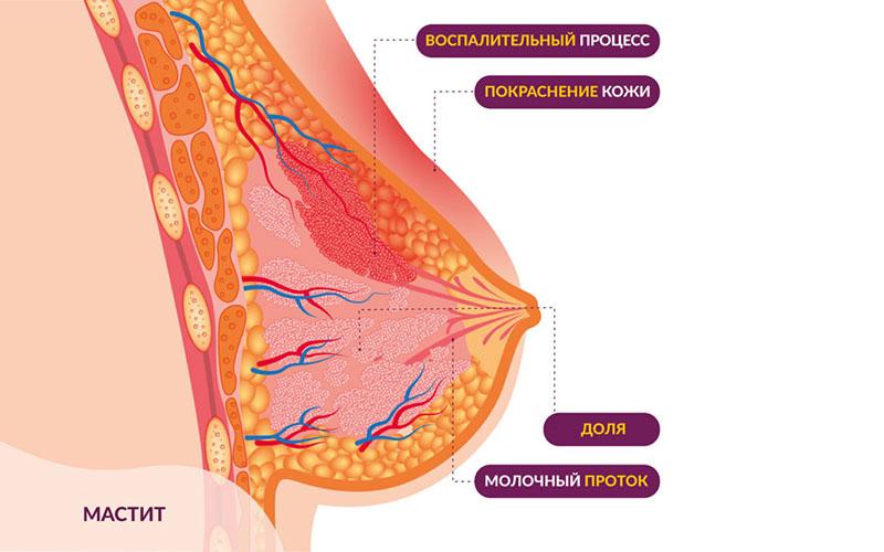 Виды и формы мастита во время кормления грудью