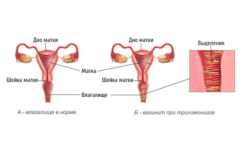Почему появляется вагинит?