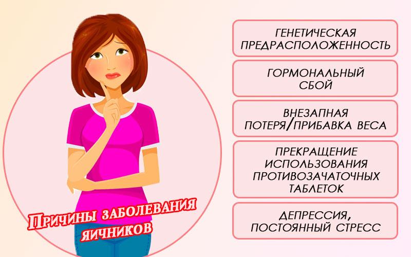Причины заболевания яичников
