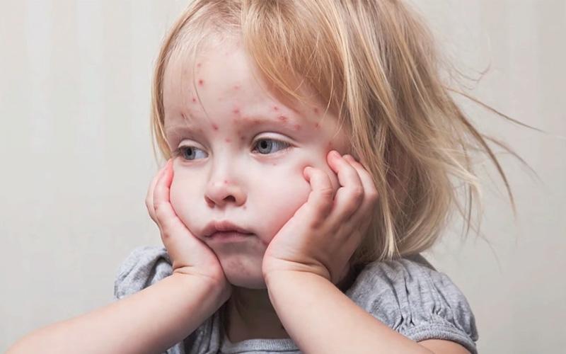 Причины возникновения краснухи у детей и взрослых?