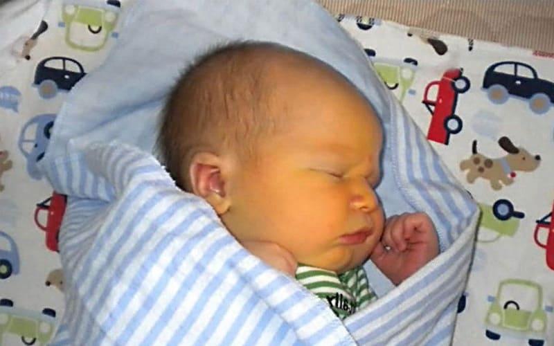 Механическая желтушка у новорожденных