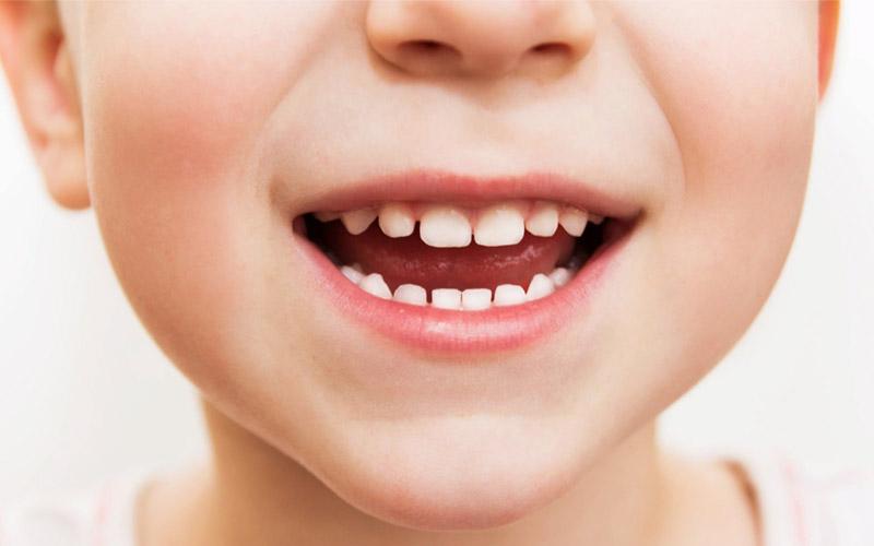 Отличие молочных от постоянных зубов: особенности строения
