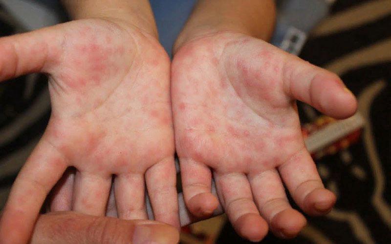 В чем же состоит опасность инфекции?