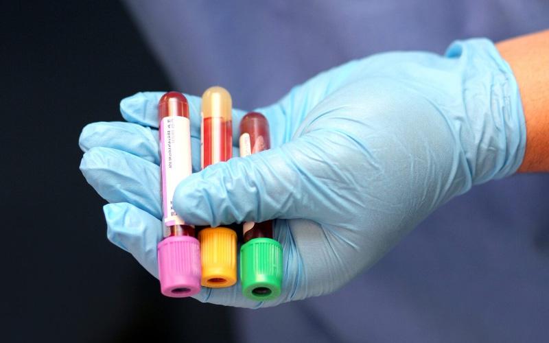 Общий анализ крови – что показывает